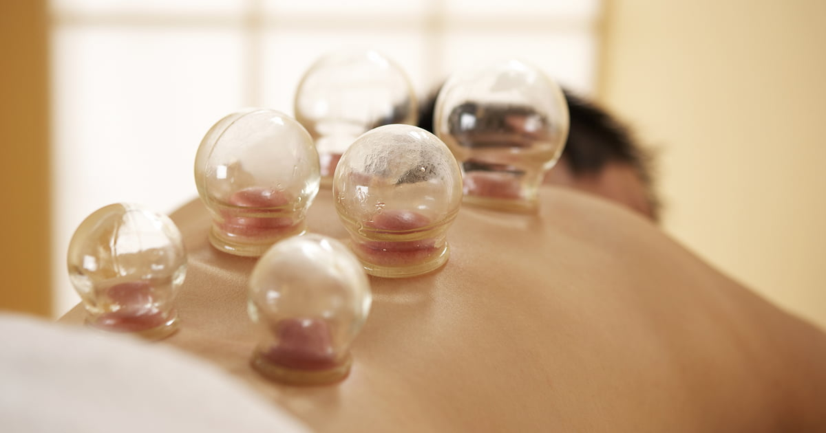 Cupping Therapy Victoria BC   West Shore Wellness